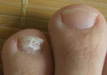 灰指甲一开始的症状