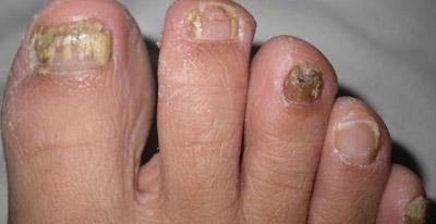 灰指甲的症状都有什么症状