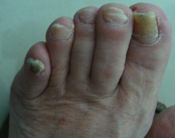 轻度灰指甲症状?