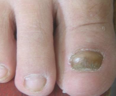 灰指甲好转的症状