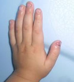 宝宝灰指甲的症状有哪些