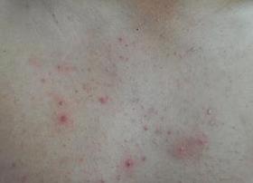 中药方治疗背部痤疮方法有哪些