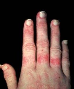 治疗红斑狼疮简单方法有哪些