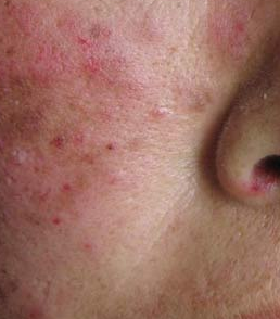 红斑狼疮如何治疗