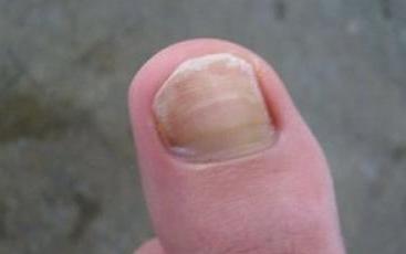 治疗灰指甲特效药