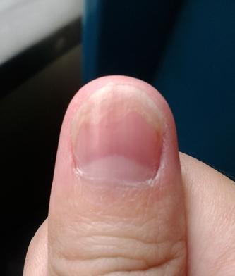 灰指甲初期症状表现有哪些