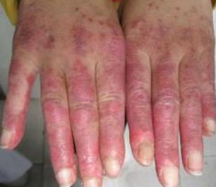 红斑狼疮中西医特色治疗的方法有哪些
