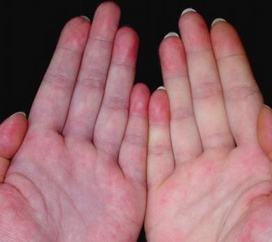 什么是红斑狼疮有什么症状