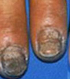 治疗灰指甲用什么药好