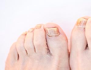 灰指甲的前期症状