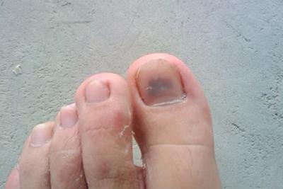 脚上有灰指甲疼怎么治