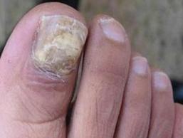 灰指甲治得好么?