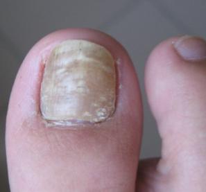 灰指甲严重了会怎样