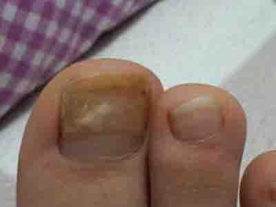 灰指甲可以用醋泡吗