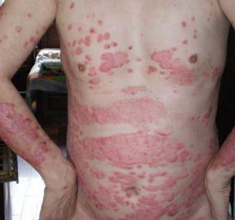 盘状红斑狼疮症状表现有哪些