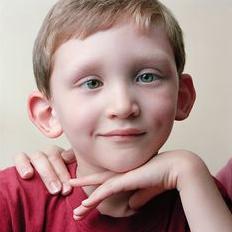 儿童面瘫护理措施