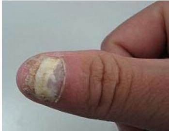 灰指甲治疗费用贵吗