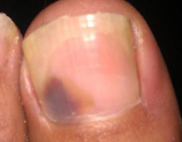 治灰指甲的医院怎么治疗呢
