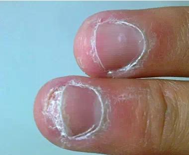 灰指甲最快治疗方法有哪些