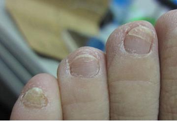 灰指甲患者的饮食怎么选择