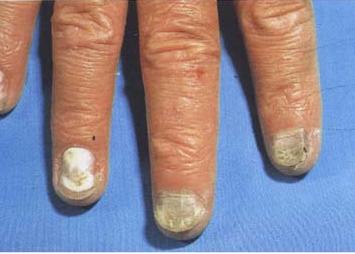 治疗灰指甲最好的方法有哪些