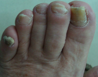灰指甲早期什么症状