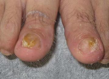 脚有灰指甲怎么治疗