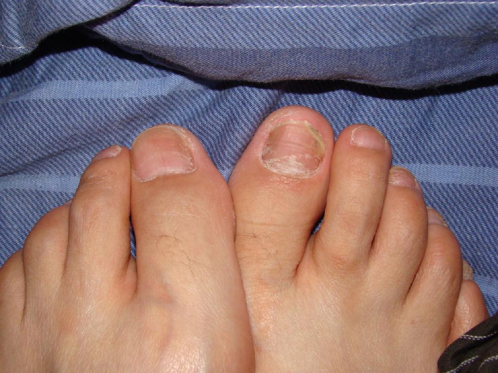 介绍脚趾灰指甲的治疗方法