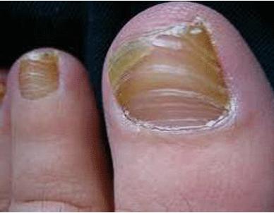 怎样预防脚上灰指甲