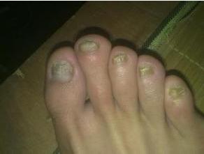 灰指甲治疗费用一般是多少