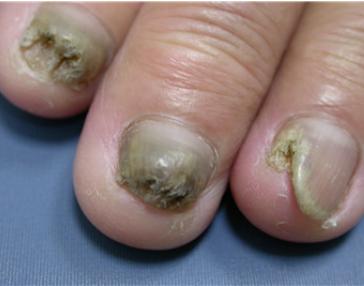 脚趾甲灰指甲治疗办法有哪些