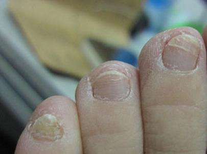 灰指甲早期怎样治疗
