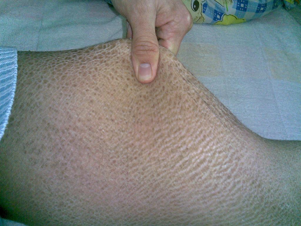 南宁治疗荨麻疹的最好医院,广西全国有名的皮肤病... _有问必答网
