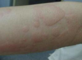 荨麻疹危害有哪些
