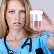 关于肾虚治疗有哪些