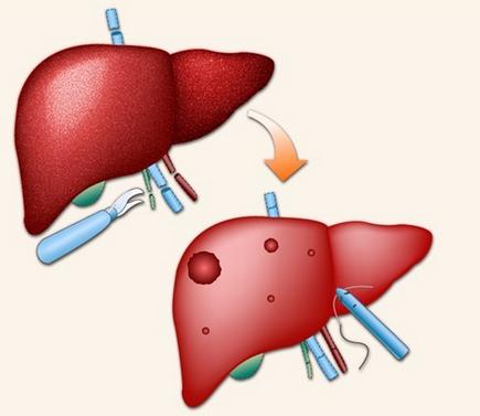 怎样预防慢性肝炎