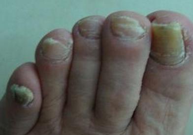 灰指甲前期的食物有哪些