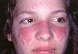 脸部红斑狼疮的病因是什么