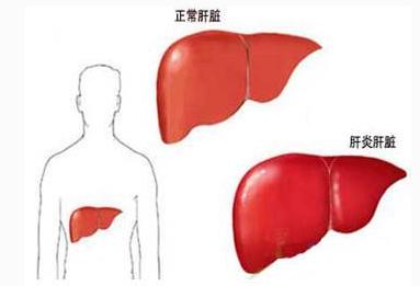 治疗肝炎方法有哪些