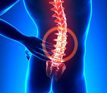 腰椎间盘突出自我检查方法有哪些