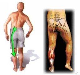 腰椎间盘突出的原因_腰椎间盘突出能遗传吗 - 飞华健康网