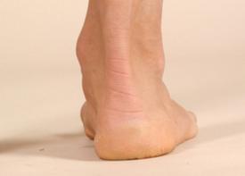 如何检查脚踝关节炎