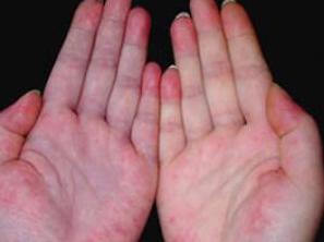 男性患红斑狼疮的症状有哪些