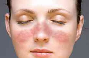慢性红斑狼疮治疗方法