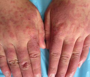红斑狼疮最早的症状有哪些呢