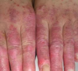 慢性红斑狼疮症状有哪些呢