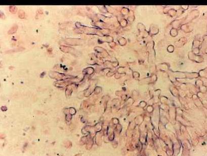 患有霉菌性阴道炎注意事项有哪些