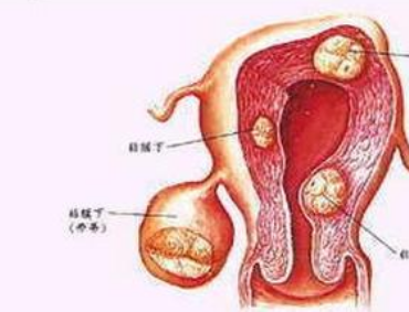 壁间子宫肌瘤怎么治疗