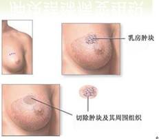 如何治疗乳腺增生结节