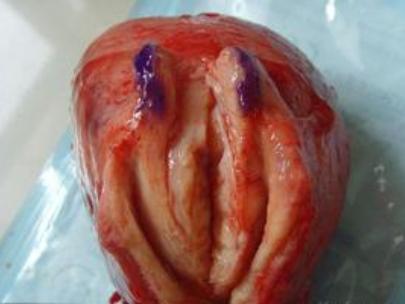 子宫肌瘤会不会遗传下一代